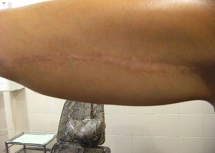 Coprire una cicatrice e/o un'ustione con un tatuaggio a Roma